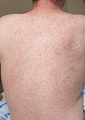 Measles+rash+Prof+Da#5FBCD9